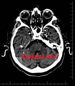 Beyin BT 2