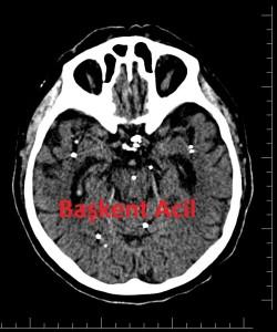 Beyin BT 4