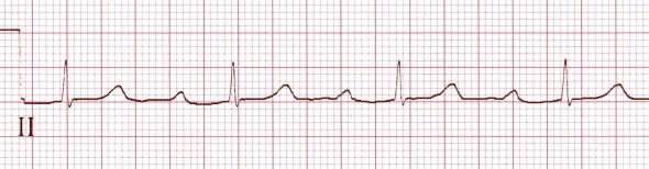 Belirgin 1. derece kalp bloğu ile birlikte sinus ritmi (PR aralığı 340 ms) Kaynak: lifeinthefastlane.com - ecg
