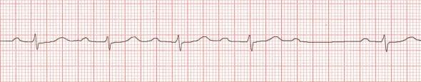 İkinci derece kalp bloğu, Mobitz Tip I (Wenckeback fenomeni). PR aralığının bir QRS kompleksi düşene kadar  her başarılı vuruda giderek uzadığına dikkat ediniz. Düşen vurudan önceki PR aralığı en uzun ( 340 ms), düşen vurudan sonraki PR aralığı ise en kısadır ( 280 ms).  Kaynak: lifeinthefastlane.com - ecg