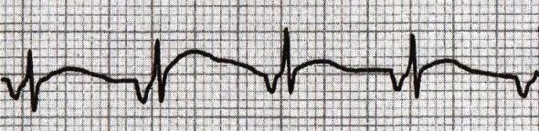 Ters P dalgaları ile birlikte kısa PR aralığının görüldüğü akselere nodal (junctional) ritm. Kaynak: lifeinthefastlane.com - ecg