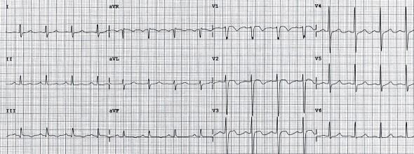 Bilateral pulmoner embolili hastada inferior ve sağ prekordiyal derivasyonlarda T dalga inversiyonu