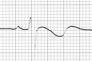 Hipokalemiye bağlı bifazik T dalgaları