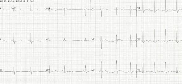 Hipokalemiye bağlı prekordiyal derivasyonlarda belirgin U dalgaları ile gözle görülür 500 ms'lik QTc. Kaynak: lifeinthefastlane.com