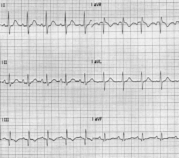 Akut pulmoner embolide S1Q3T3 patterni