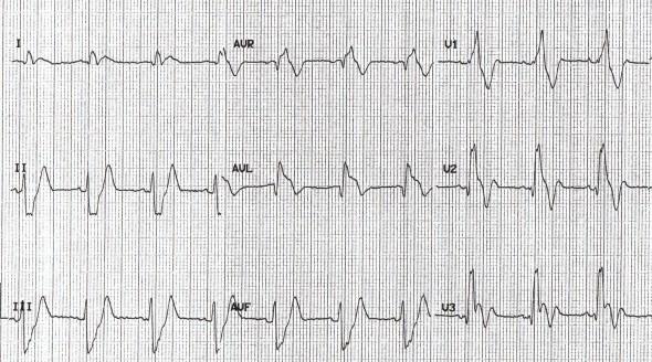 Masif pulmoner embolili bir hastada sağ dal bloğu ile birlikte V1-3'de derin T dalga inversiyonu