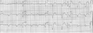 LBBB EKG