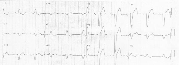 Sol dal bloğuna bağlı lateral T dalga inversiyonu
