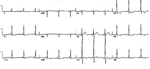 LGL sendromunda normal QRS kompleksleri ile birlikte kısa PR aralığı Kaynak: lifeinthefastlane.com - ecg