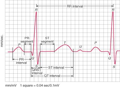EKG Dalga, İnterval ve Segmentleri
