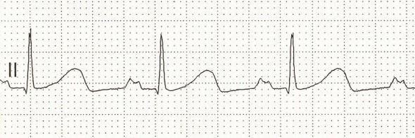 Sol atrial genişlemede bifid P dalgaları (P mitrale) Kaynak: LITFL