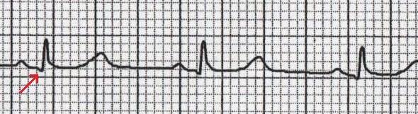 V6'da Normal Q Dalgası Kaynak: lifeinthefastlane.com - ECG Basics