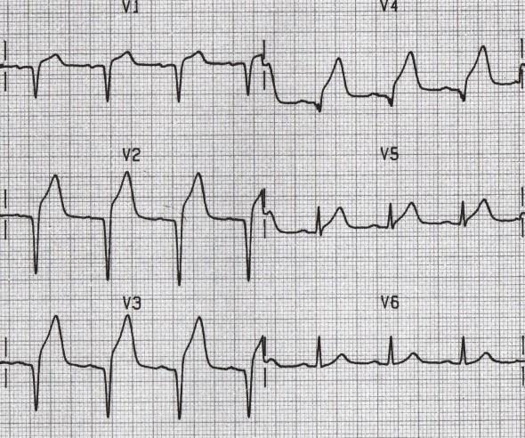 Akut MI'a bağlı ST elevasyonu ile anterior Q dalgaları (V1-4)