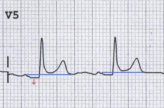 Akut perikardite bağlı V5'te PRsegment depresyonu (aynı zamanda konkav ST elevasyonu olduğuna dikkat ediniz). Kaynak: lifeinthefastlane.com - ecg
