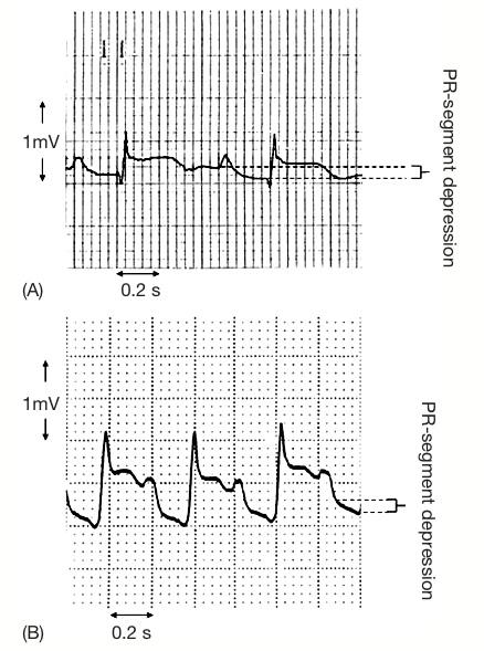 TP segmenti belirgin olan (A) ve olmayan (B) PR segment ölçümü (Jim ve ark.dan alıntıdır).