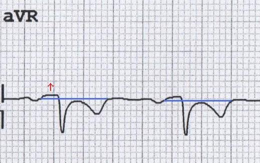 Akut perikardite bağlı aVR'de PR elevasyonu (resiprokal ST depresyonuna dikkat ediniz). Kaynak: lifeinthefastlane.com - ecg