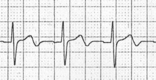 İsklemiye bağlı bifazik T dalgaları