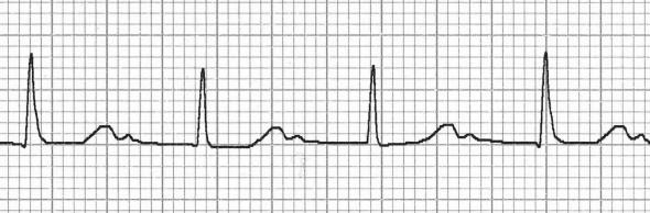 Belirgin 1. derece kalp bloğunda saklı P dalgaları