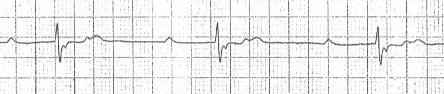 2:1 iletimli 2. derece kalp bloğunda saklı P dalgaları