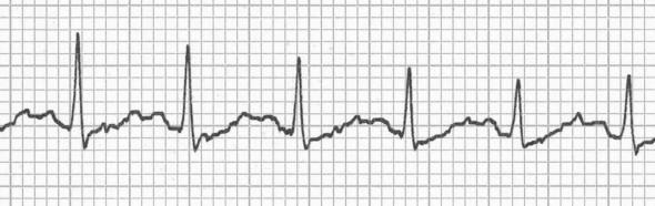 Sinüs taşikardisinde saklanmış P dalgaları