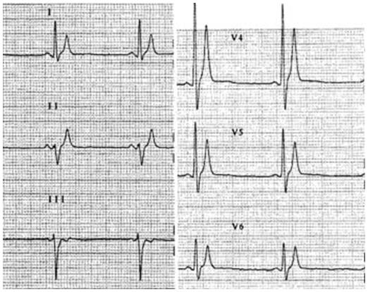 Kısa QT sendromu hastalarında sivri T dalgaları ile çok kısa QT(<300 ms). Kaynak: lifeinthefastlane.com - ecg