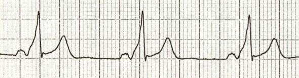 WPW sendromunda kısa PR (<120 ms), geniş QRS ve delta dalgaları Kaynak: lifeinthefastlane.com -ecg