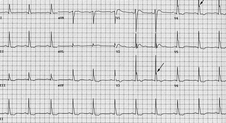 Ciddi hiperkalseminin (4.1 mmol/lt) neden olduğu Osborn dalgaları. Görüntü Otelo & Renihan'dan alınmıştır (Aşağıdaki referanslara bakınız).