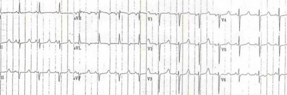 Hipokalsemiye bağlı 510 ms'lik QTc Kaynak: lifeinthefastlane.com - ecg