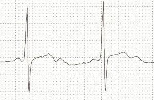 Ciddi hipokalemiye bağlı çıkıntılı U dalgaları