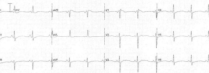 Hipokalemiye bağlı T dalga düzleşmesi