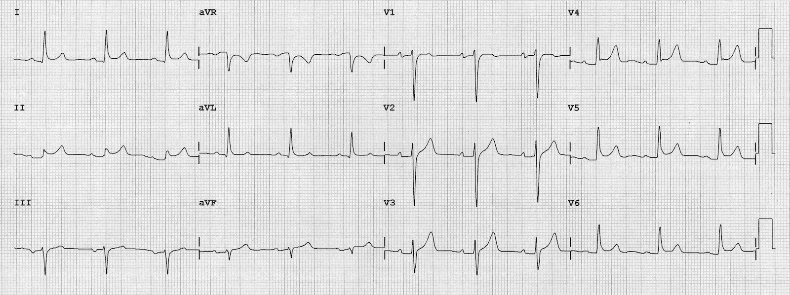 Akut perikarditte tipik EKG Kaynak: lifeinthefastlane.com - ecg
