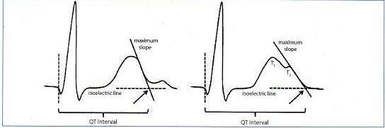 QT aralığı QRS kompleksi başlangıcı ve T dalgası sonu arası mesafe olarak tanımlanır. Maksimum eğim kesişimi metodu, T dalgası bitimini izoelektrik hat ile aşağı maksimum eğim üzerine çizilen tanjant çizgisi ile kesişimi olarak kabul eder(solda). Çentikli T dalgası varlığında (sağda), QT aralığı QRS başlangıcından izoelektrik hat ve ikinci çentiğin(T2) maksimum eğiminin kesişim noktası üzerinden çizilen tanjant çizgisi ile hesaplanır. Kaynak: lifeinthefastlane.com - ecg