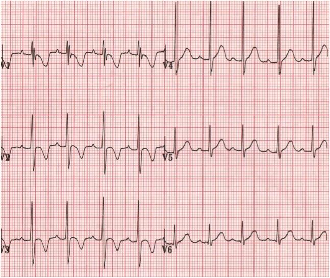 Pediatrik EKG: V1'de R dalgası