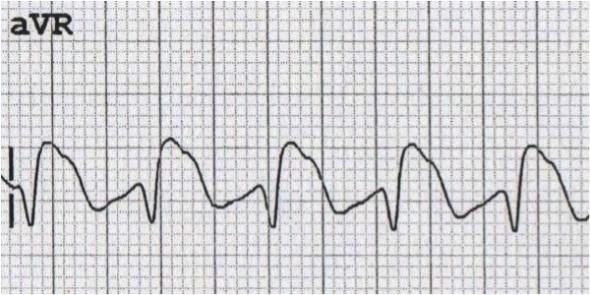 aVR'de dominant R dalgası ile giden Na kanal blokör intoksikasyonu