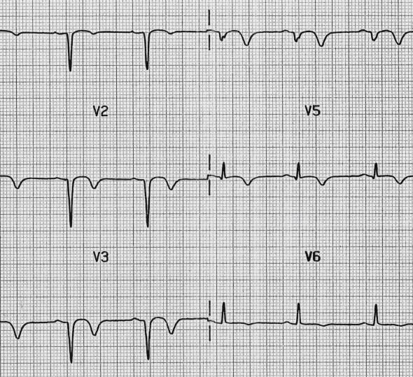 Yakın zamanda geçirilen anterior MI'a bağlı Q dalgaları ile birlikte anterior T dalga inversiyonları