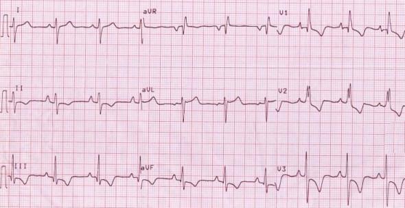 Sağ ventrikül hipertrofisine bağlı inferior ve sağ prekordiyal derivasyonlarda T dalga inversiyonu