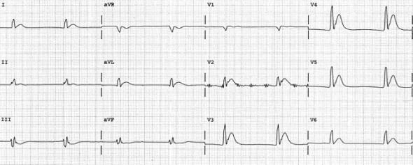 Hiperkalsemiye bağlı belirgin QTc kısalması(260 ms). Kaynak: lifeinthefastlane.com - ecg