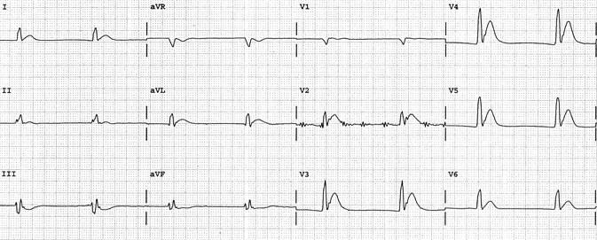 Belirgin QT kısalmasına (260 ms) yol açan hiperkalsemi. Şekil Kyuhyun (K.) Wang'ın mükemmel elektrokardiyografi atlasından alınmıştır.  Kaynak: lifeinthefastlane.com - ecg