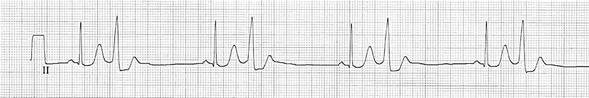 Hem dar hem de geniş QRS komplekslerini gösteren EKG örneği. Kaynak: lifeinthefastlane.com - ecg