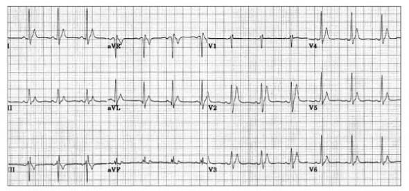 Konjenital kısa QT sendromuna bağlı uzun, sivri T dalgaları ile birlikte çok kısa QTc (280 ms). Kaynak: lifeinthefastlane.com - ecg