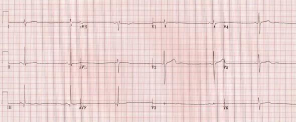 Anorexia nervoza'ya bağlı sinüs bradikardisi olan hastada belirgin U dalgaları