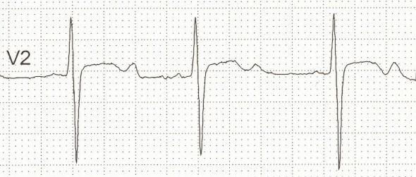 K⁺ 1.9 olan hastada belirgin U dalgaları