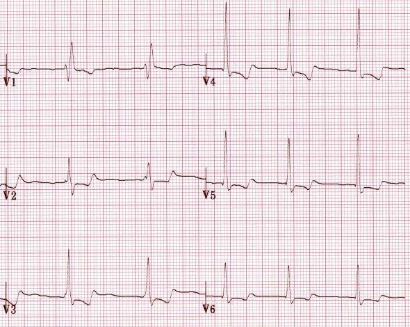 Digoksin kullanan bir hastada belirgin U dalgaları