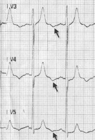 Anstabil anjinası olan bir hastada ters U dalgaları. Kaynak: lifeinthefastlane.com - Girish ve ark. izniyle.