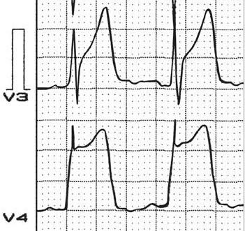Prinzmetal anjinası olan bir hastada ters U dalgaları.  Kaynak: lifeinthefastlane.com - Pérez Riera ve ark. izniyle.