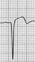 ventricular-aneursym