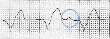 Disosiye P dalgalarının görüldüğü AIVR Kaynak: lifeinthefastlane.com - ECG library