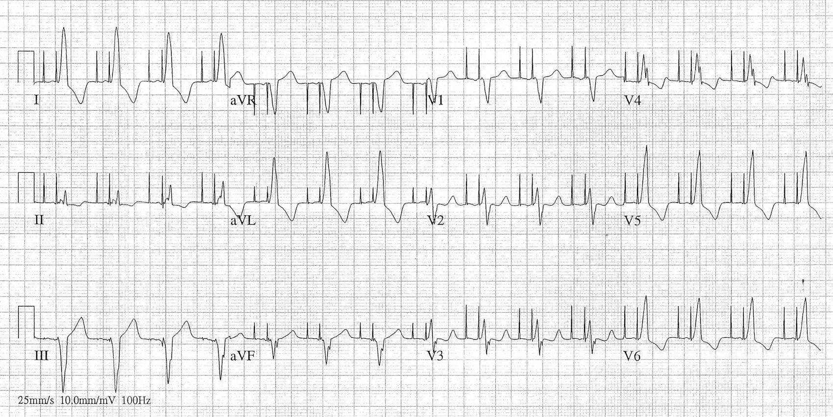 Birbirini izleyen atriyal ve ventriküler odak. Kaynak: lifeinthefastlane.com - ECG library