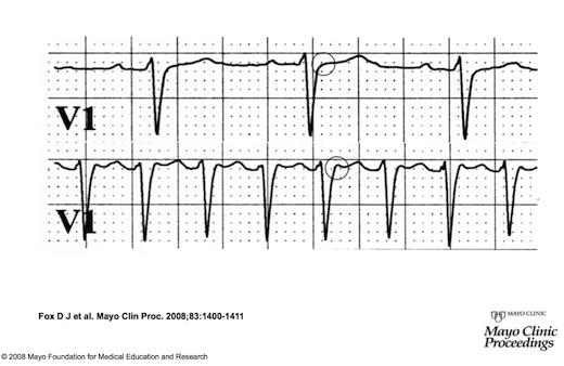 Sinus ritmi(üstte) ve paroksismal SVT'yi (altta) gösteren kardiyak ritm çizgisi. Taşikardi boyunca, V1 derivasyonunda P dalgaları yalancı R dalgası ( altta daire içerisinde) olarak görülmektedir. Buna karşıt olarak, yalancı R dalgası sinus ritmi boyunca görülmez ( üst çizgide daire içerisindeki alanda yok). Bu çok kısa ventrikülo-atriyal süre sıklıkla tipik yavaş-hızlı AVNRT'de görülür. Kaynak : lifeinthefastlane.com - ECG library