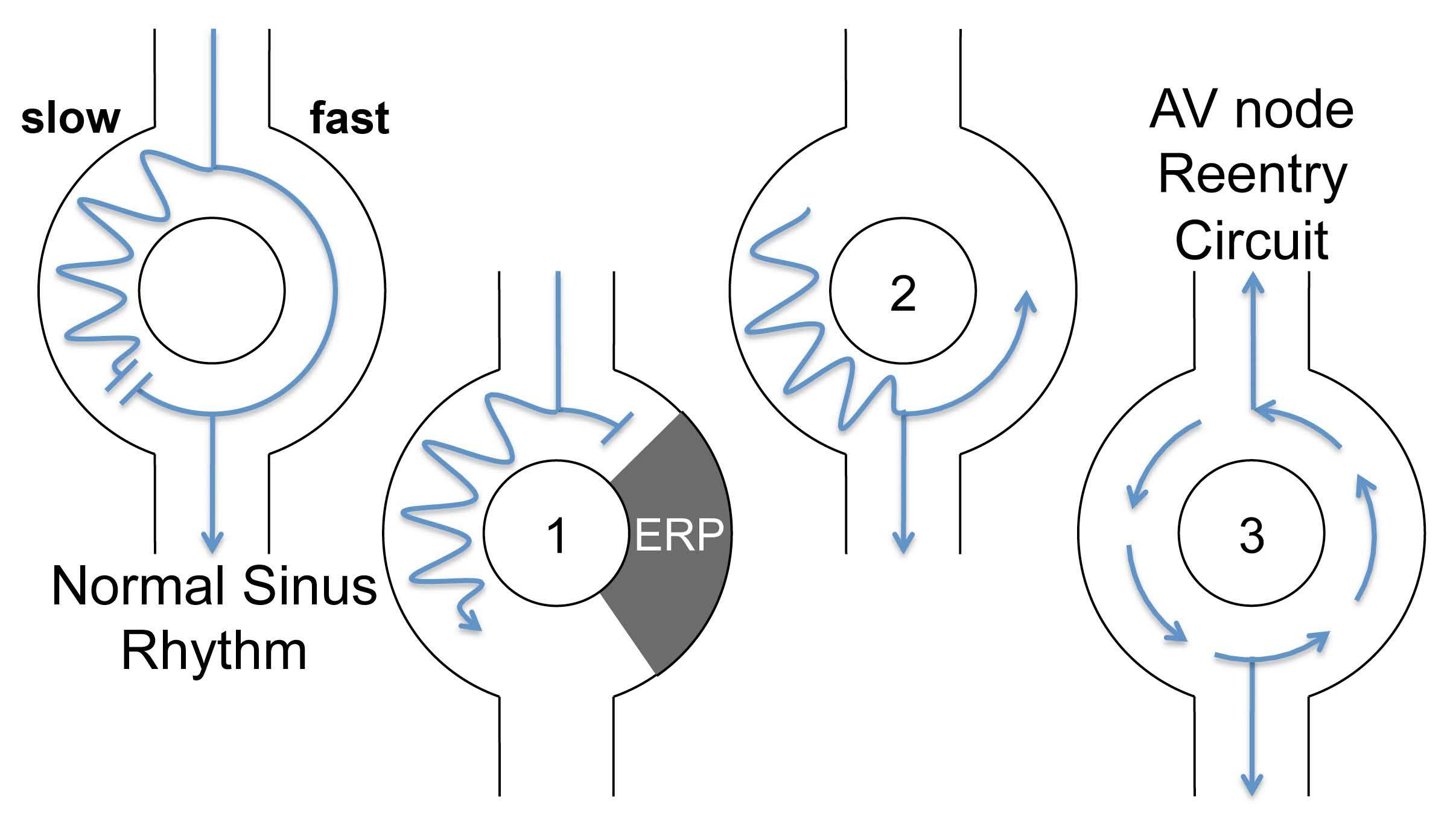 Hızlı-yavaş AVNRT'de yavaş-hızlı reentry mekanizması Kaynak: lifeinthefastlane.com - ECG library